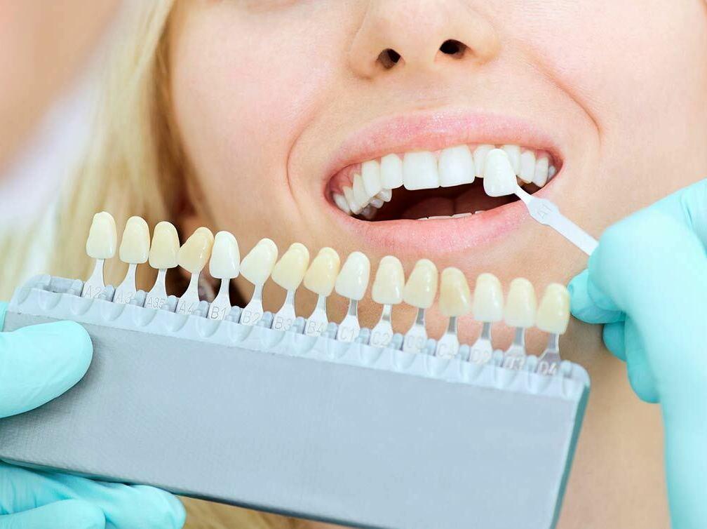 Стоматологический центр «Стоматолог и Я» предлагает отбеливание зубов при помощи системы ZOOM4