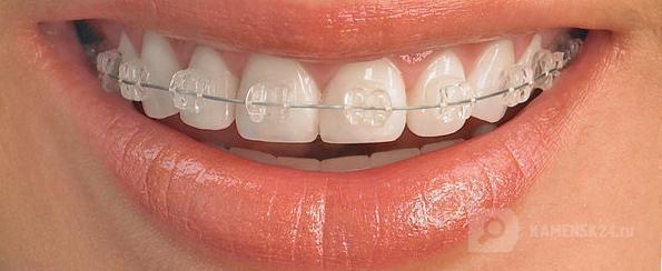 В клинике «Стоматолог и Я» ставят брекеты «Дэймона»!