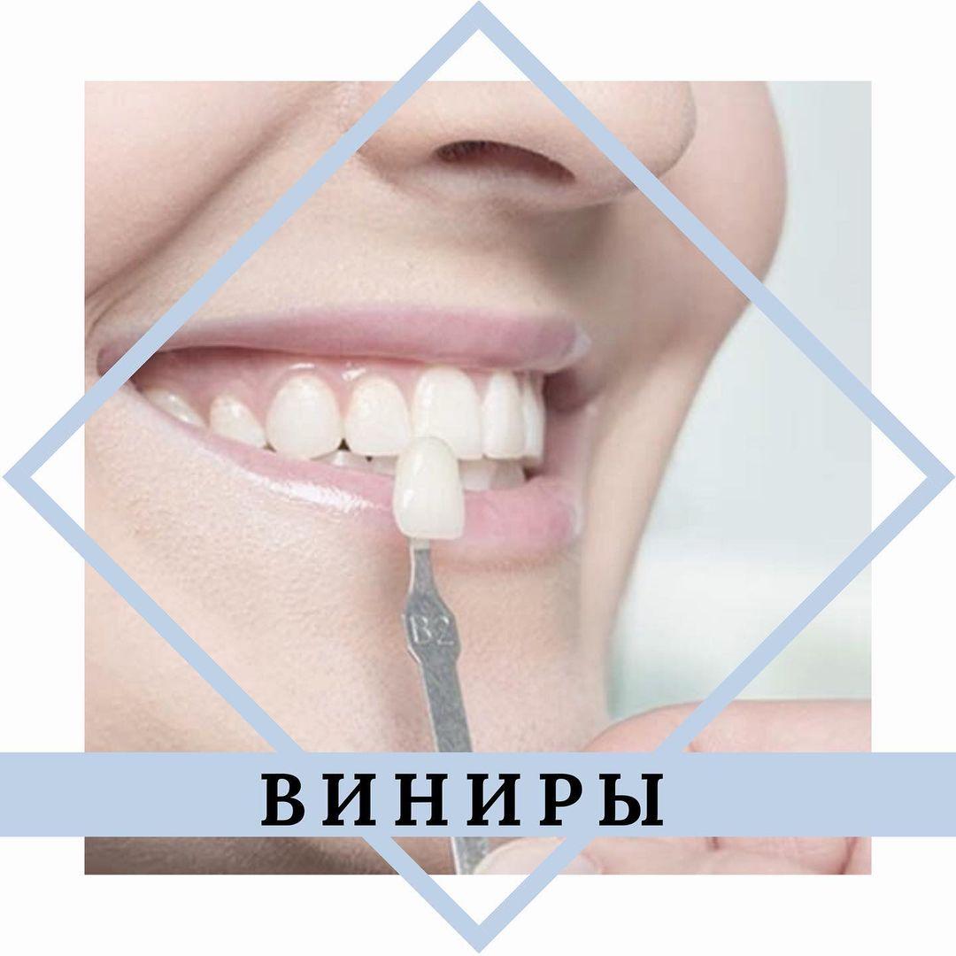 Специалисты центра «Стоматолог и Я» приглашают на винирование