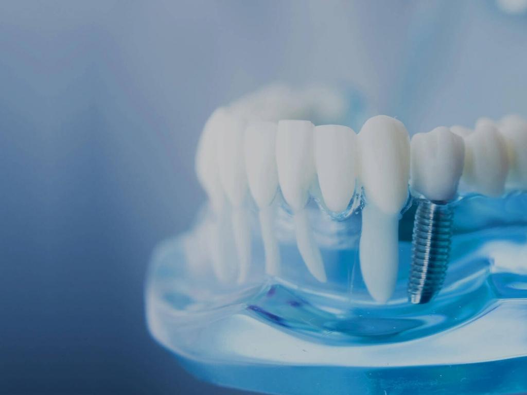 Стоматологический центр «Стоматолог и Я» приглашает Вас на консультацию по имплантации и протезированию зубов